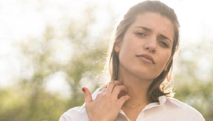 cara mengatasi digigit tawon